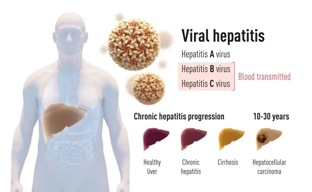 型 肝炎 a