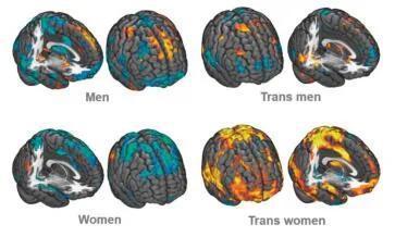人类的性别在大脑中不止只有严格的两种性别